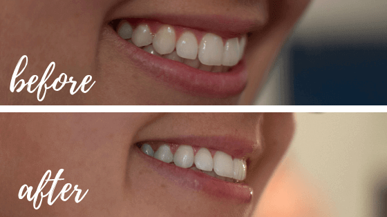 Affordable and Easy At-Home Teeth Whitening for Coffee Stains with Smile Brilliant